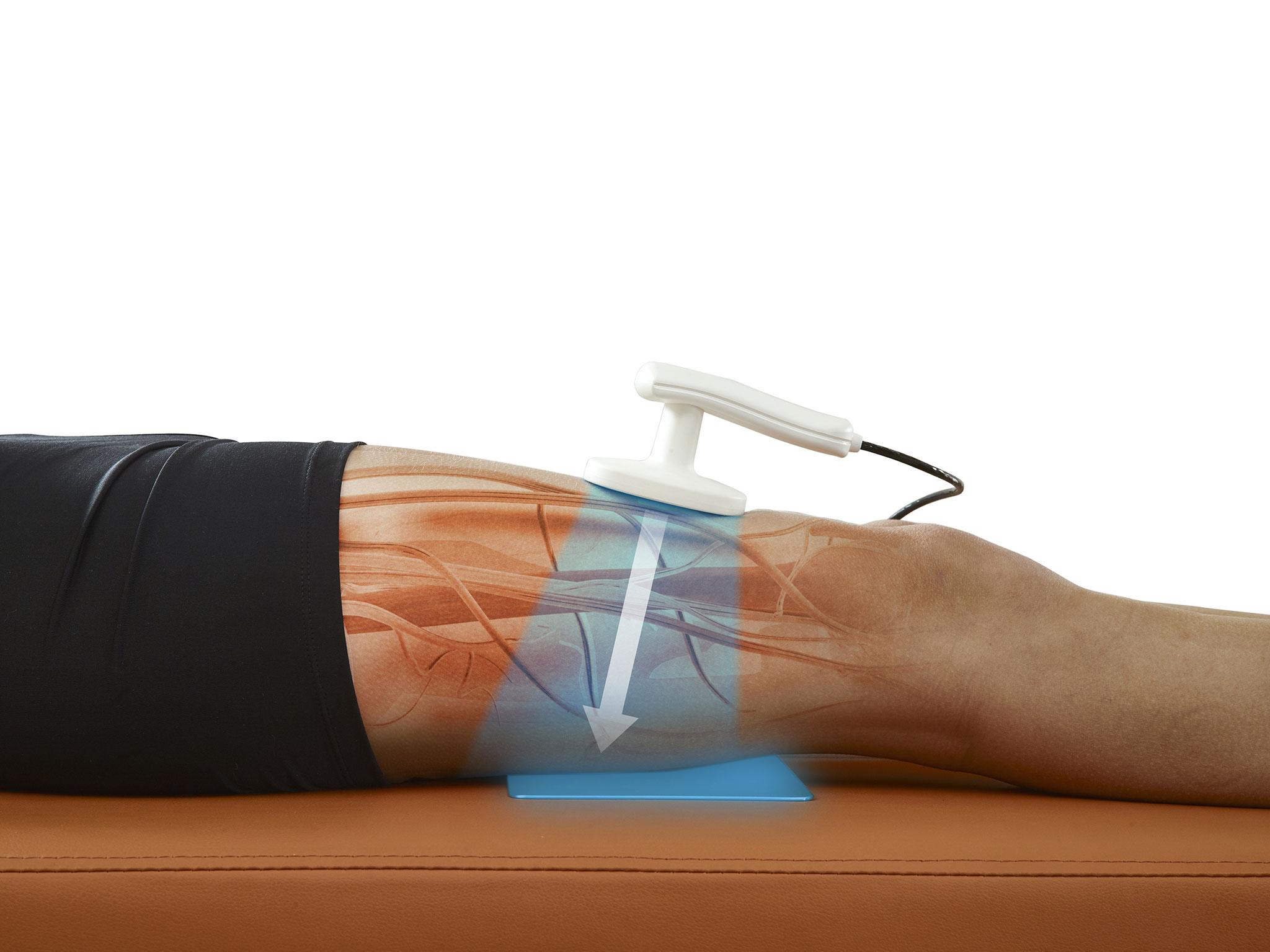 Athermische Behandlung mit dem Gymna Care 300