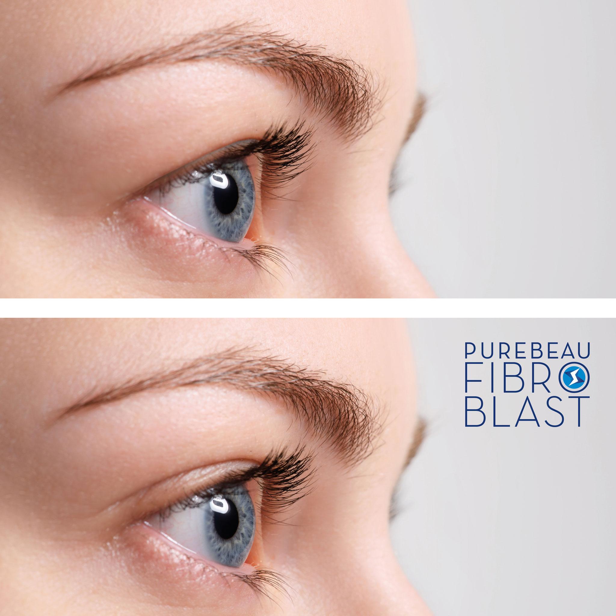 Effektprinzip der noninvasiven Augenlidstraffung