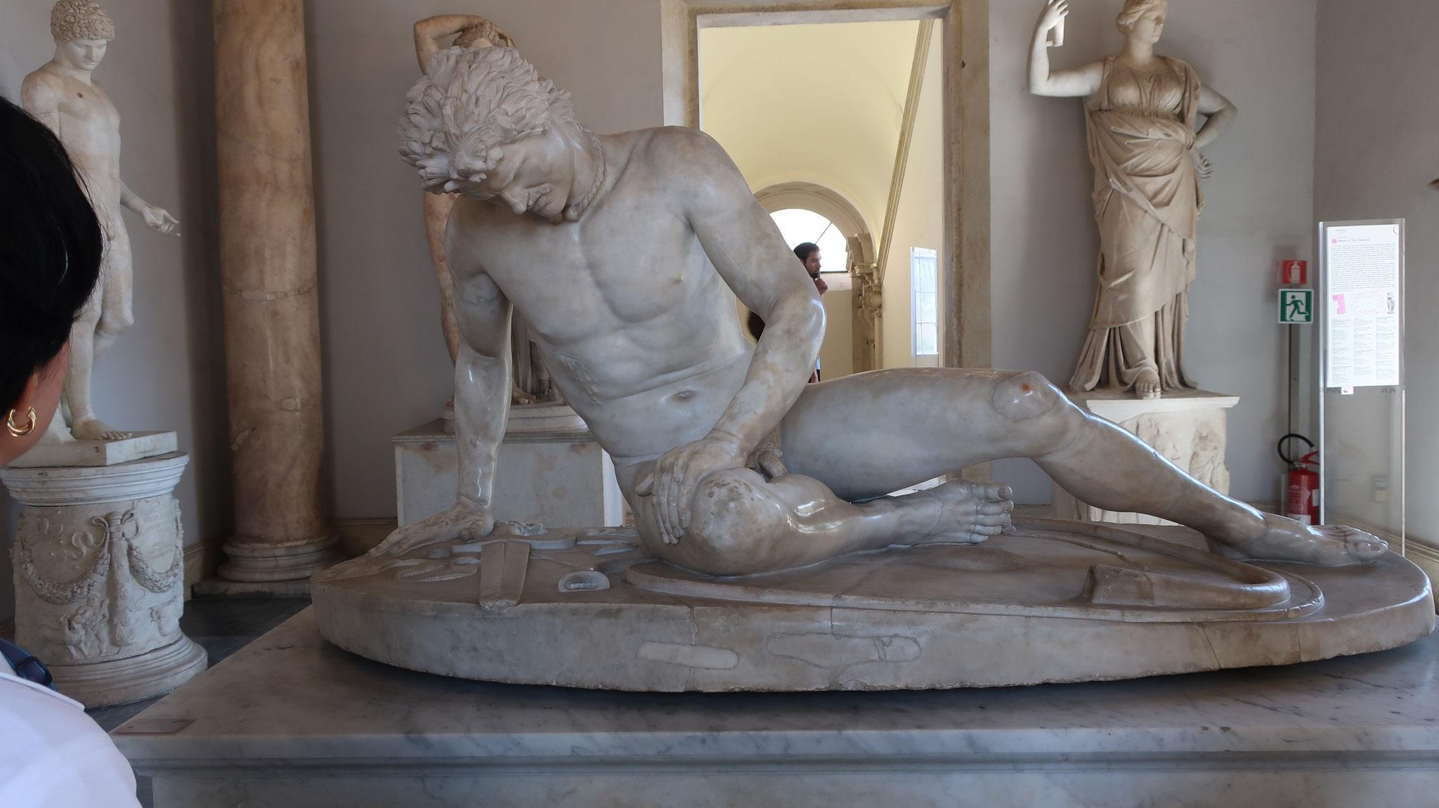 瀕死のガリア人。紀元前3世紀頃のブロンズ像をローマ時代に摸刻した物。