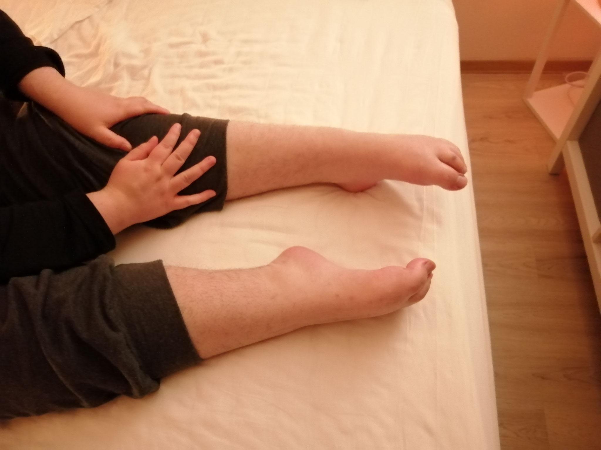 Meine Füße haben sich verkrümmt und lassen sich auch nicht mehr in die normale Position biegen. Anfassen tut weh!