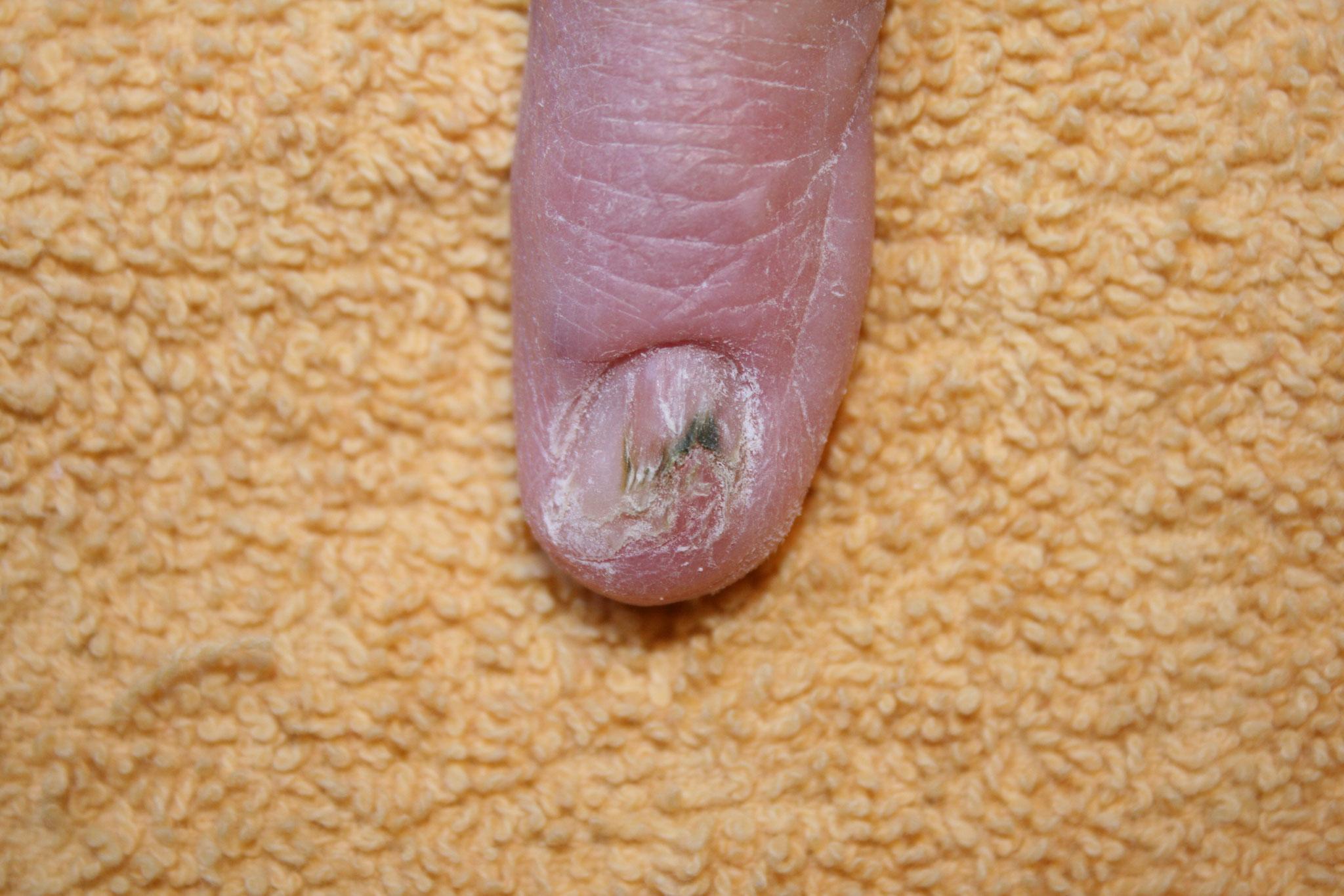 nach Unfall zerstörter Nagel - vorher