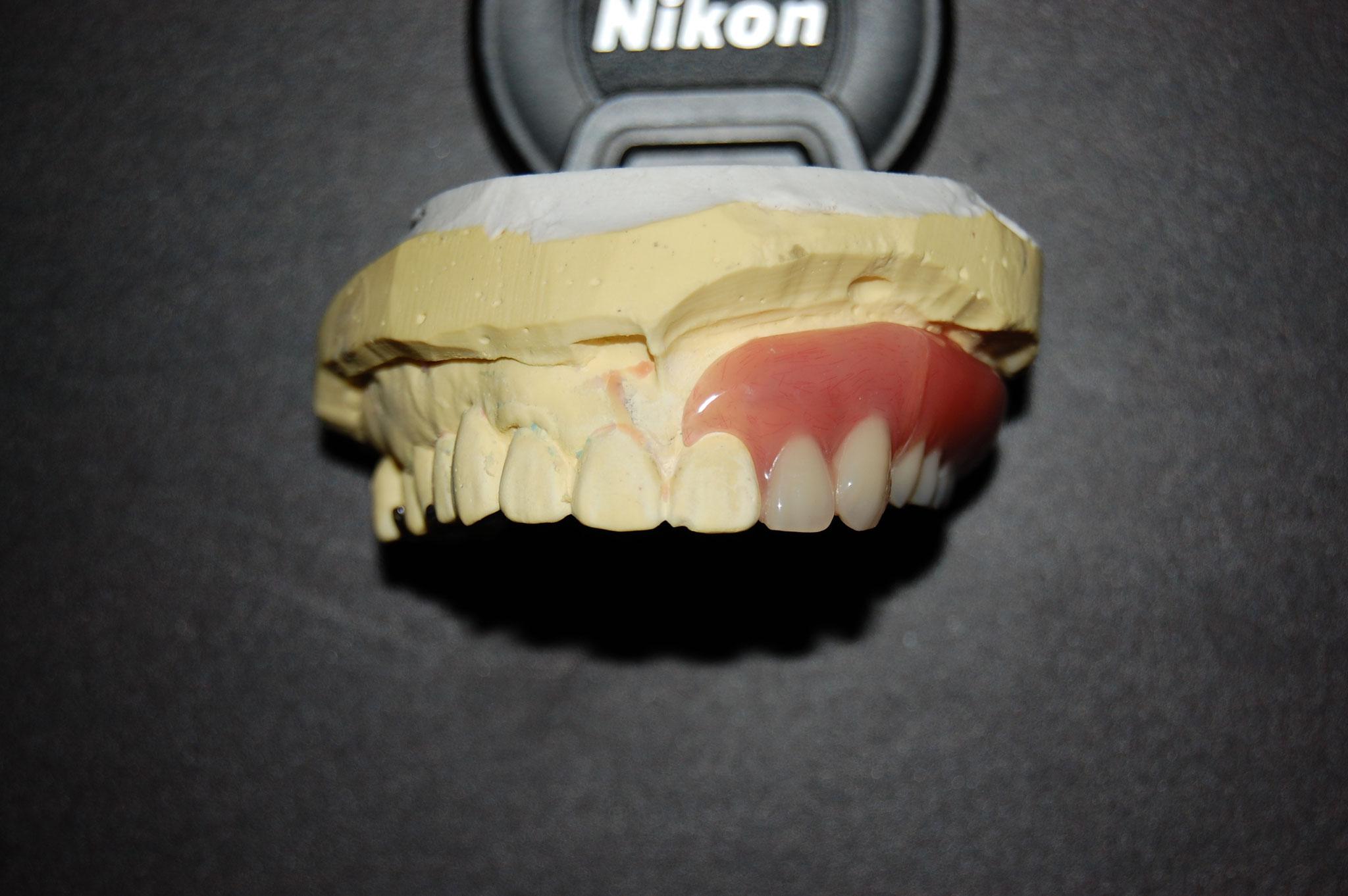 前歯回転タイプ