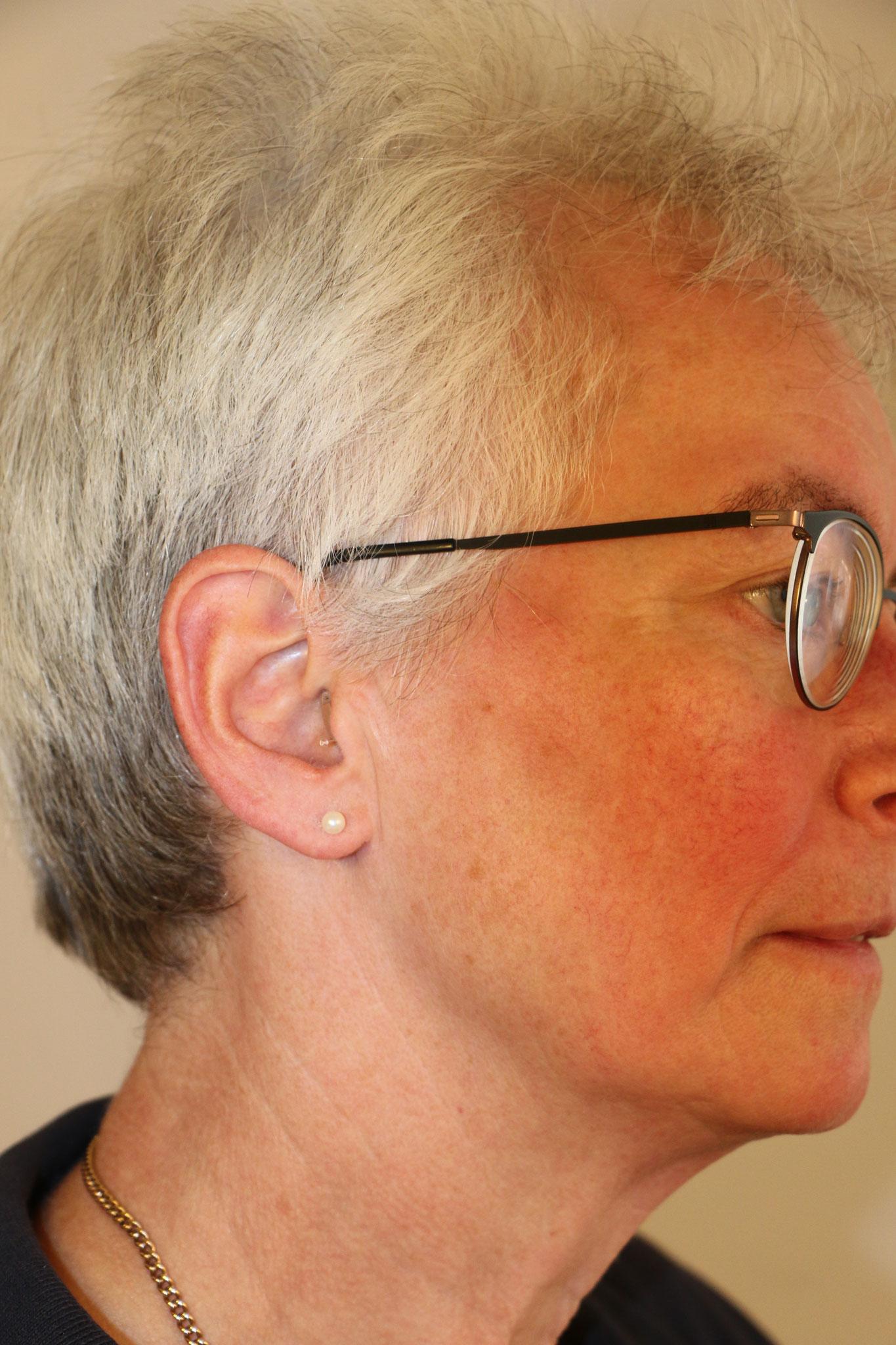 Im-Ohr-Gerät - von vorn und der Seite fast unsichtbar