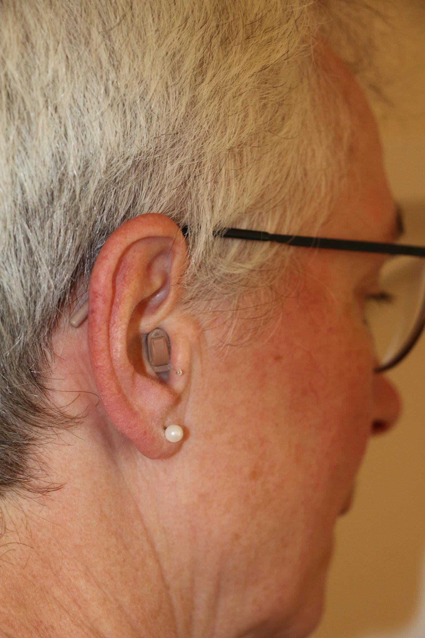 Im-Ohr-Gerät, Blick in das Ohr
