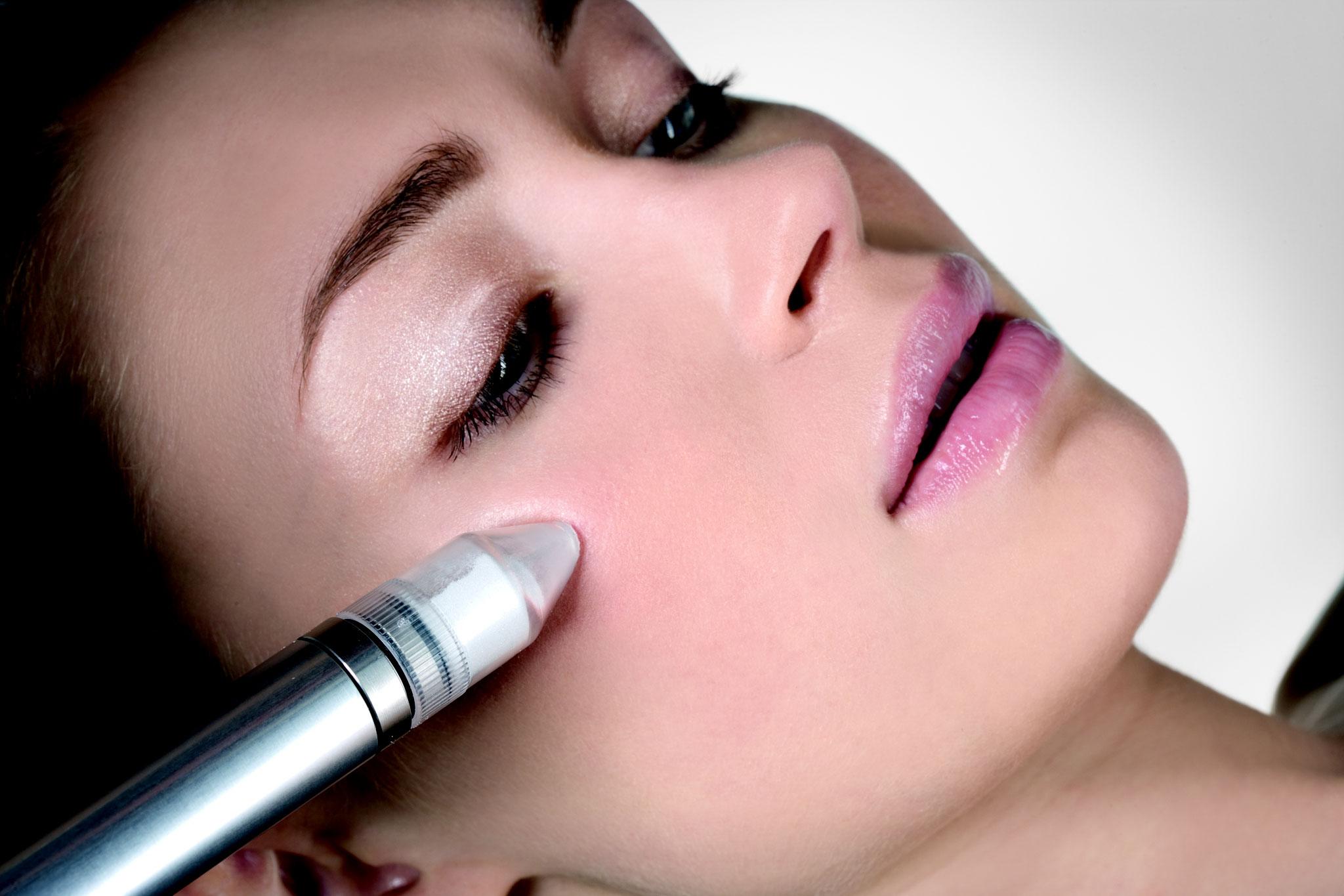 MicroDermAbrasion >> intensives Peeling , sanfte und kontrollierte Abtragung der obersten Hautschicht mit MicroKristallen >> Hautverjüngung >> Falten-, Pigmentfleck- und Narbenreduktion >> Glättung des Hautreliefs  >> Porenverfeinerung, reine,  zarte Haut