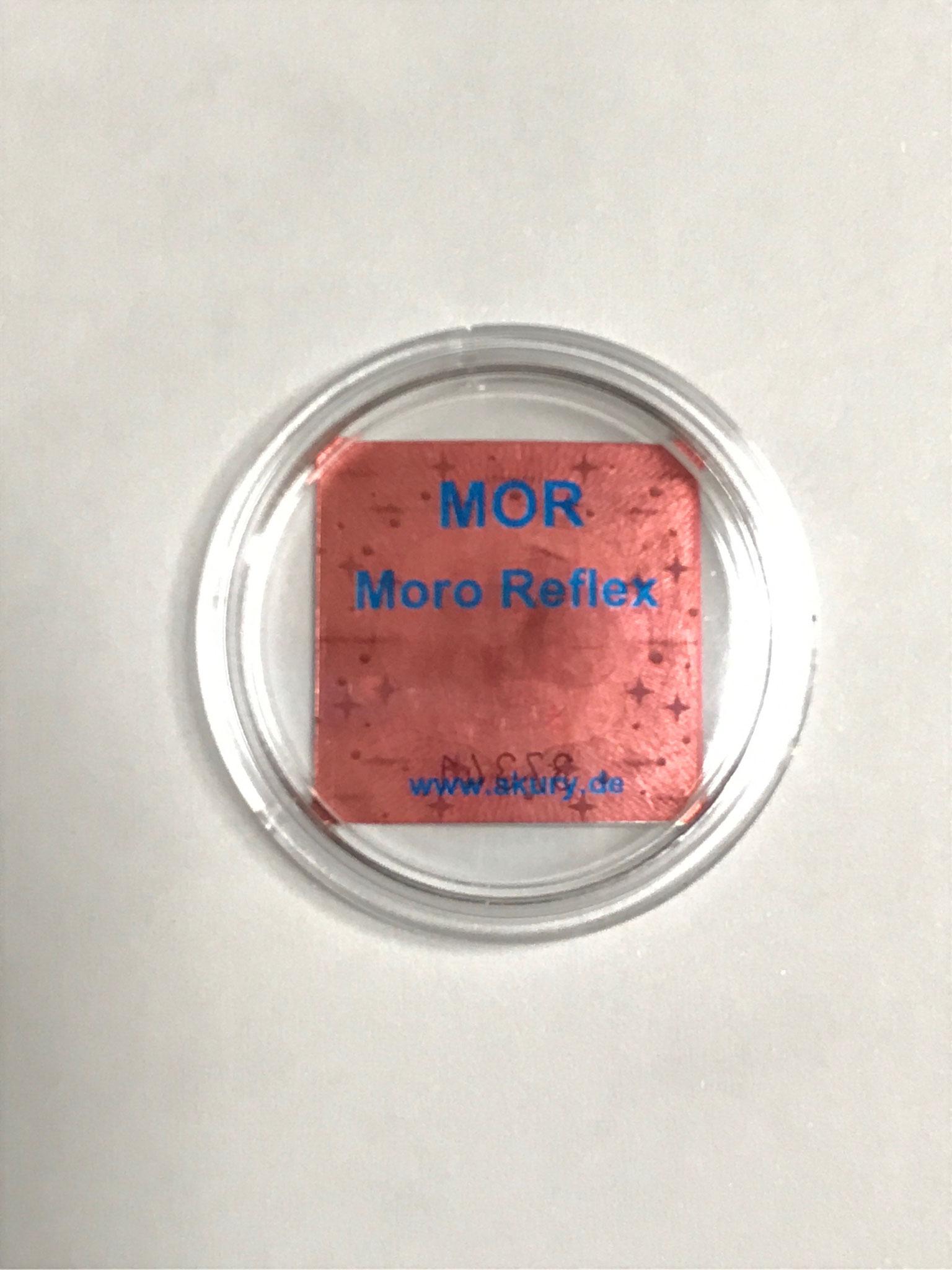 モロー反射