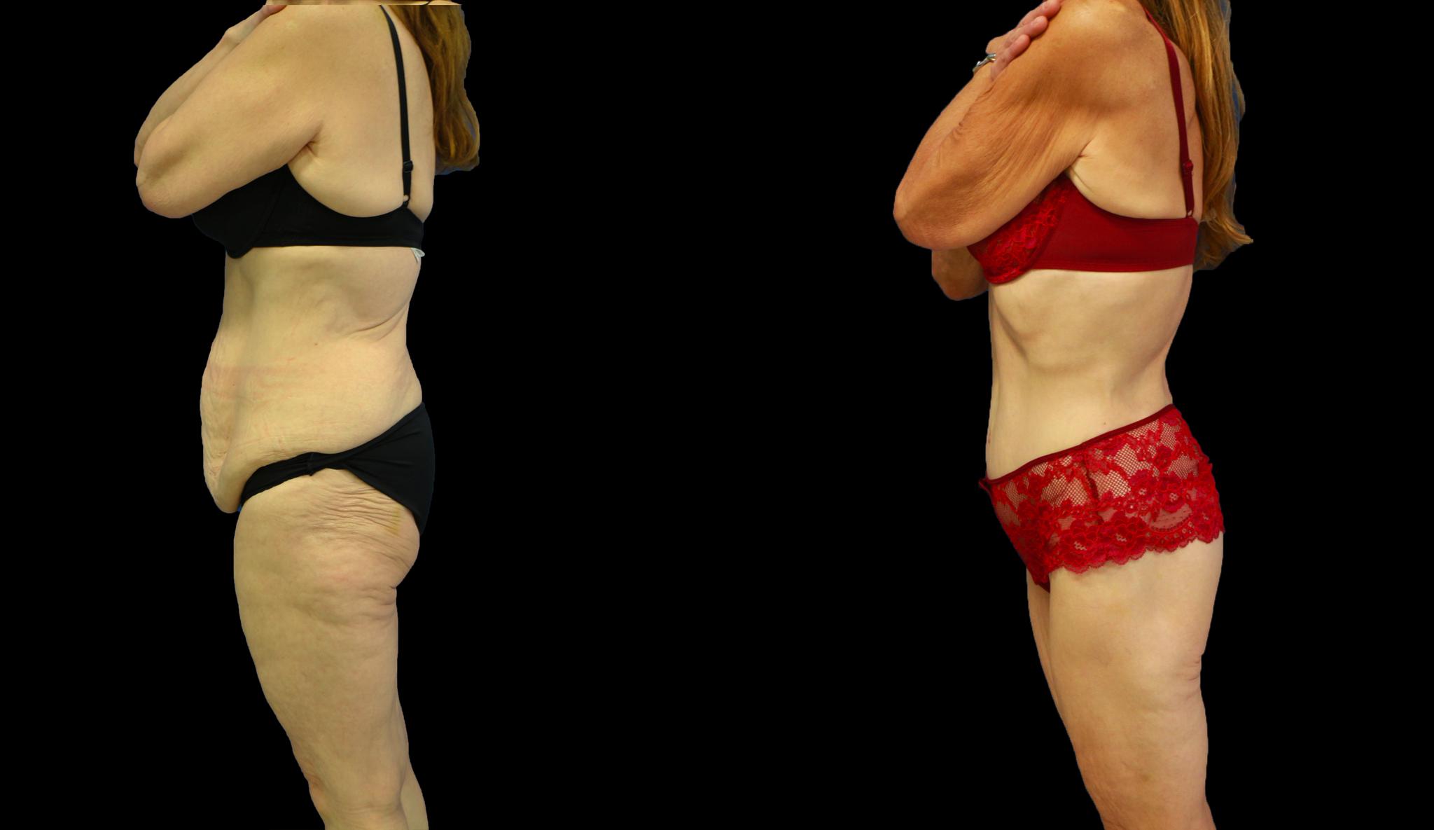 Perte de 9 kg  / Dr Vivien Moris