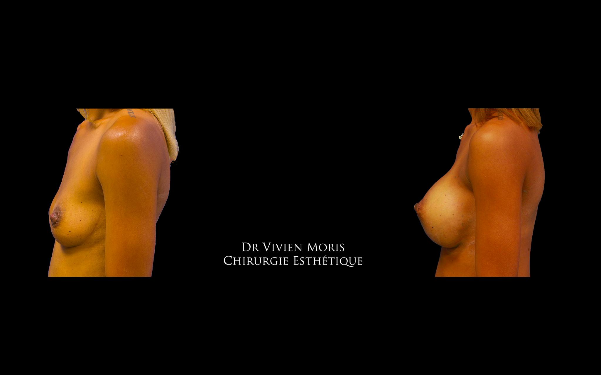 Taille d'implants : 450 cc / Dr Vivien Moris