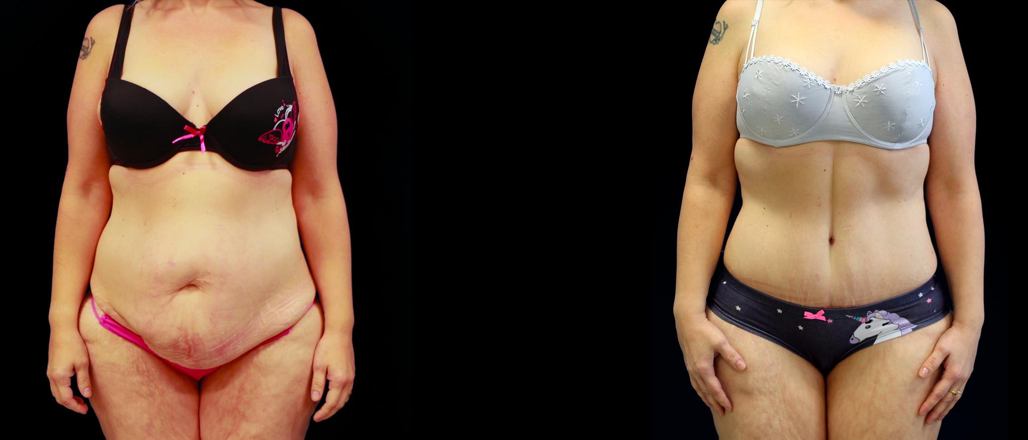 Plastie abdominale Face Avant / Après Dr Vivien Moris