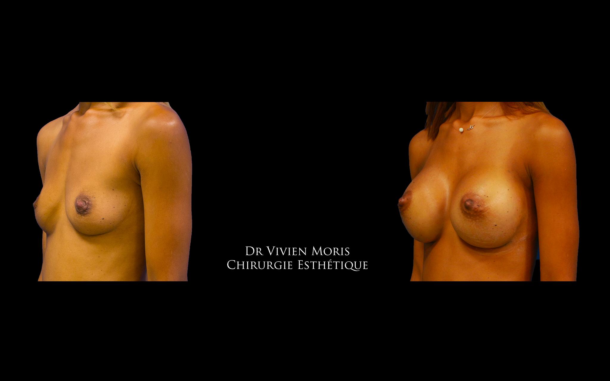 Prothèses mammaires / Dr Vivien Moris