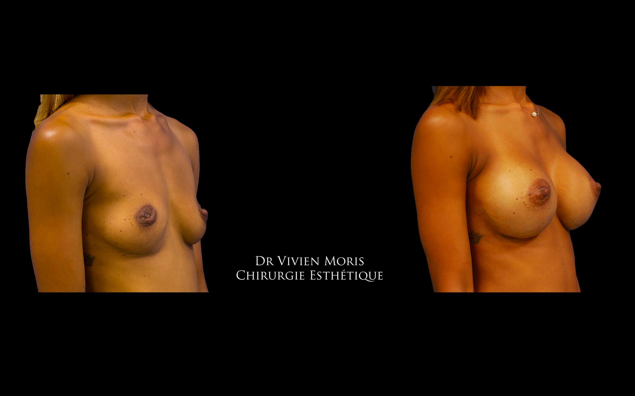 Augmentation mammaire / Dr Vivien Moris