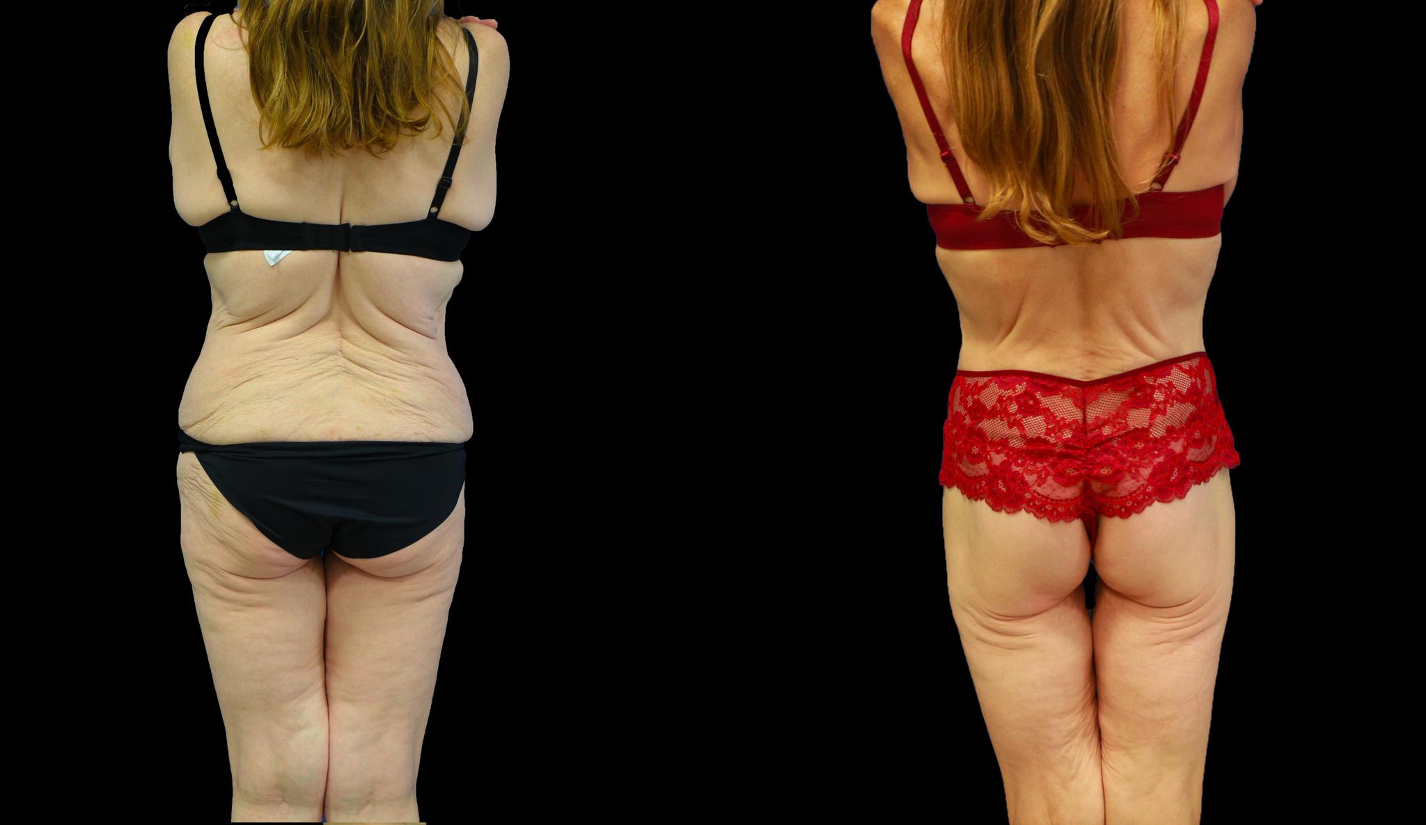 Lifting des fesses lors du body lift  / Dr Vivien Moris