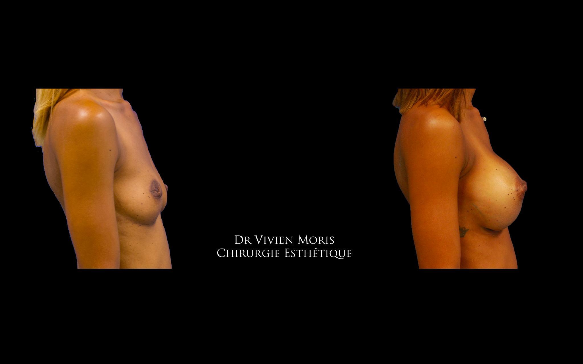 Profil haut / Dr Vivien Moris