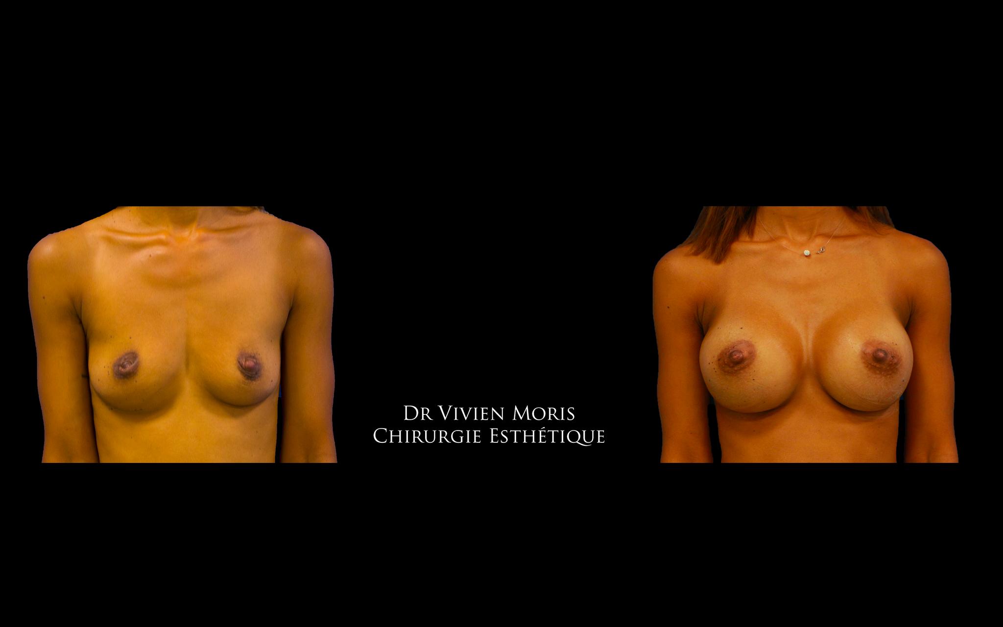 Implants mammaires / Dr Vivien Moris