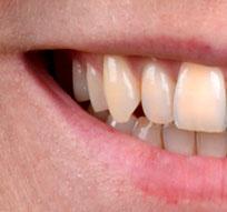 normale Zahnfarbe