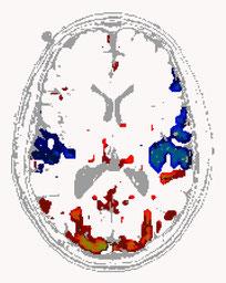 fMRT-Aufnahme mit Gedanken-Oszillatoren