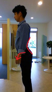 腰椎椎間板ヘルニアに悩む奈良県広陵町の男性