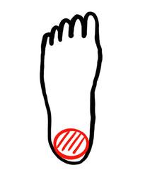 図1.1/踵接地時の足底荷重