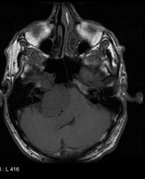 Schwannoma trigeminal nerve T1
