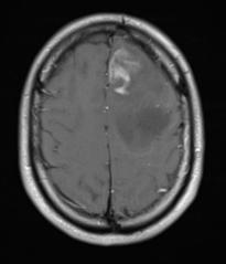 Anaplastic astrocytoma T1