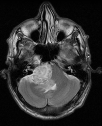 Schwannoma trigeminal nerve T2
