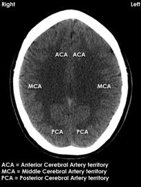 Vascular territories of the brain, Anterior Cerebral Artery, Middle Cerebral Artery, Posterior Cerebral Artery, Vertebro-Basilar Artery