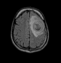 Brain abscess T1 dual rim sign