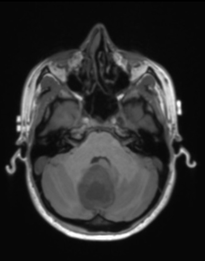 Pilocytic astrocytoma T1