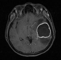 Brain abscess contrast