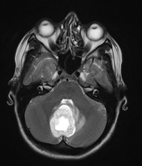 Pilocytic astrocytoma T2