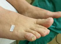 Estudio preoperatorio del pie antes de realizar cirugía