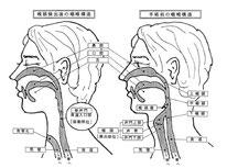 手術前と手術後の咽喉構造