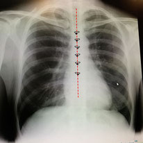 胸骨のワイヤー