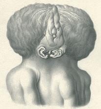 頭胸結合双胎