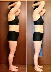 美ボディ痩身 12回コース 50代主婦の体験結果 横