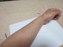 手首の腱鞘炎の治療例