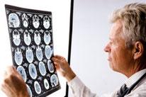 ms - sclerose en plaques