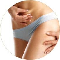 Cellulitebehandlungen