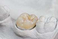 Dental mold with a crown placed on a tooth
