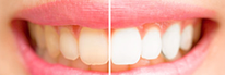Zahnarztpraxis Domsch Bleaching