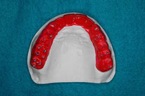 神田ふくしま歯科のホワイトニング
