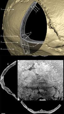 Suprainiac fossa in Neandertals