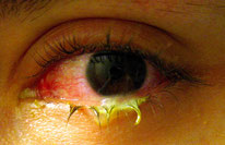 puss from bacterial conjunctivitis - photo via Tanalai at English Wikipedia