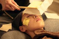 美容鍼 鍼灸