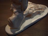 MC式インソールは、踵骨を正しい位置に着地させて、 バランス矯正パットにより着地した足を正しい方向に誘導します。 このバランス矯正パットは、外反母趾に見られる過剰回内を抑える効果や O脚の方の過剰回外を抑える効果により膝へのストレスを軽減いたします。     踵骨を正しい位置で着地することにより、足は転がるように前へ進むことが出来ます。 この転がるような感覚をサポートするのがMC式インソールの特徴