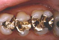 Goldinlays in der Zahnarztpraxis Burbach Groß-Umstadt, Darstadt, Dieburg