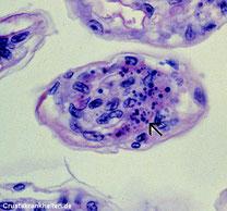 Einschlüsse mit variabele Färbung und kugelförmigen zytoplasma im Kiemenquerschnitt.