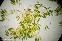 Substrathyphen und Zoosporangien mit Sporen. 40fache Vergrößerung