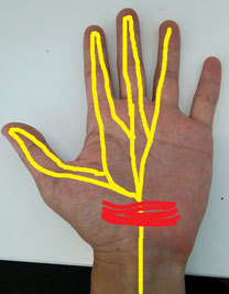 奈良県香芝市の頸椎ヘルニア整体師の手