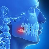 Oralchirurgie Leipzig